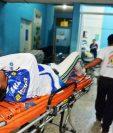 El acróbata Mauricio Peña sufrió una fractura en la pierna izquierda. (Foto Prensa Libre: Mario Morales)
