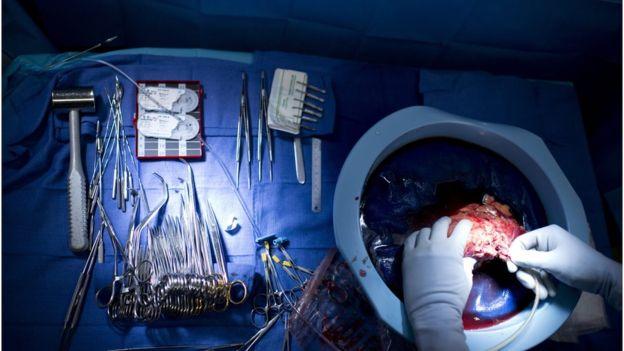 El riñón donado al único paciente que sigue con vida le tuvo que ser extraído. (GETTY IMAGES)