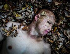 Cuando Lyosha tenía 2 años su padre lo lanzó dentro de un horno de leña. PAVEL VOLKOV