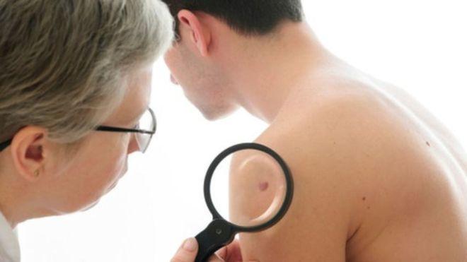 La autoexploración es fundamental para una detección temprana del cáncer de piel. GETTY IMAGES