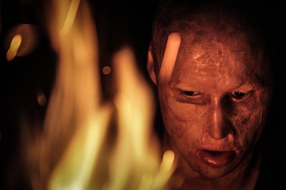 Pese a lo que le sucedió, Lyosha asegura que le gusta el fuego y puede quedarse mirándolo durante horas. PAVEL VOLKOV