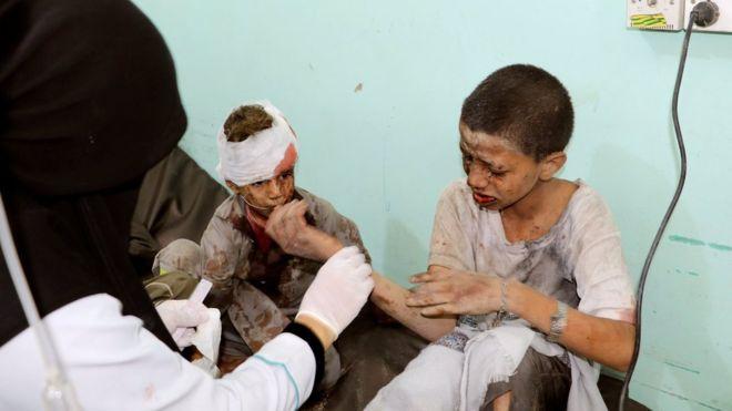 Al menos 29 niños que viajaban en un autobús escolar mueren en Yemen tras un ataque aéreo de Arabia Saudita