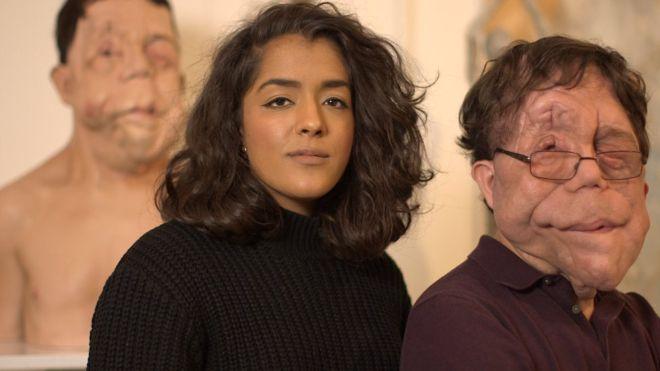 A lo largo de la grabación del documental, Arooj Aftab conoció a Adam Pearson, que también padece NF1.