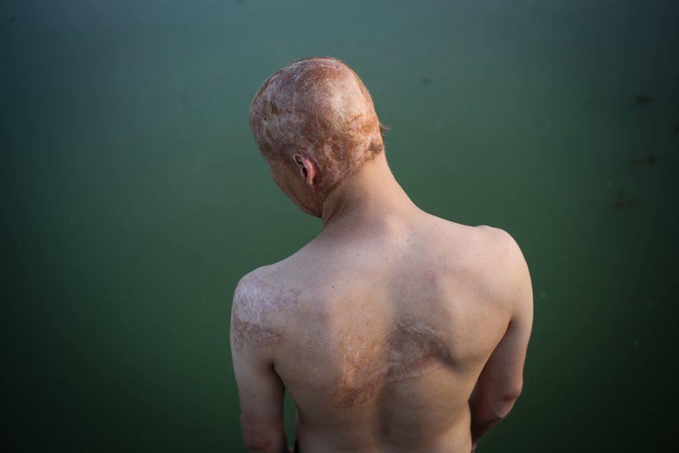 Lyosha sufrió quemaduras en la cabeza, los hombros y los brazos. PAVEL VOLKOV