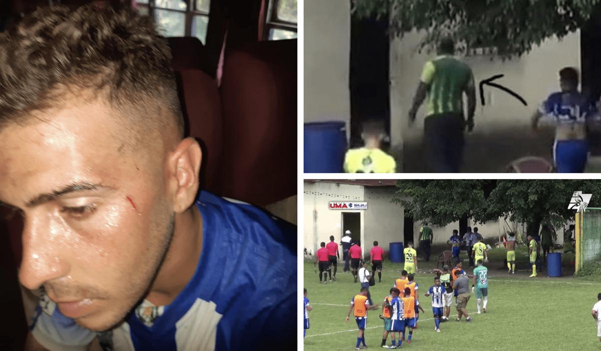 Dirigente de Nueva Concepción agredió con una pistola a jugador de Deportivo Reu