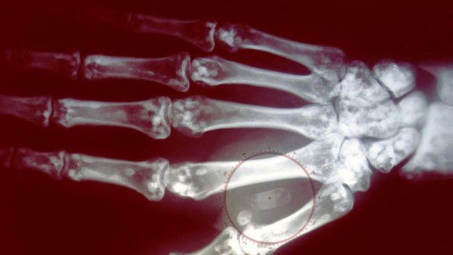 ¿Te implantarías el microchip para pagar sin tarjeta? (GETTY IMAGES)
