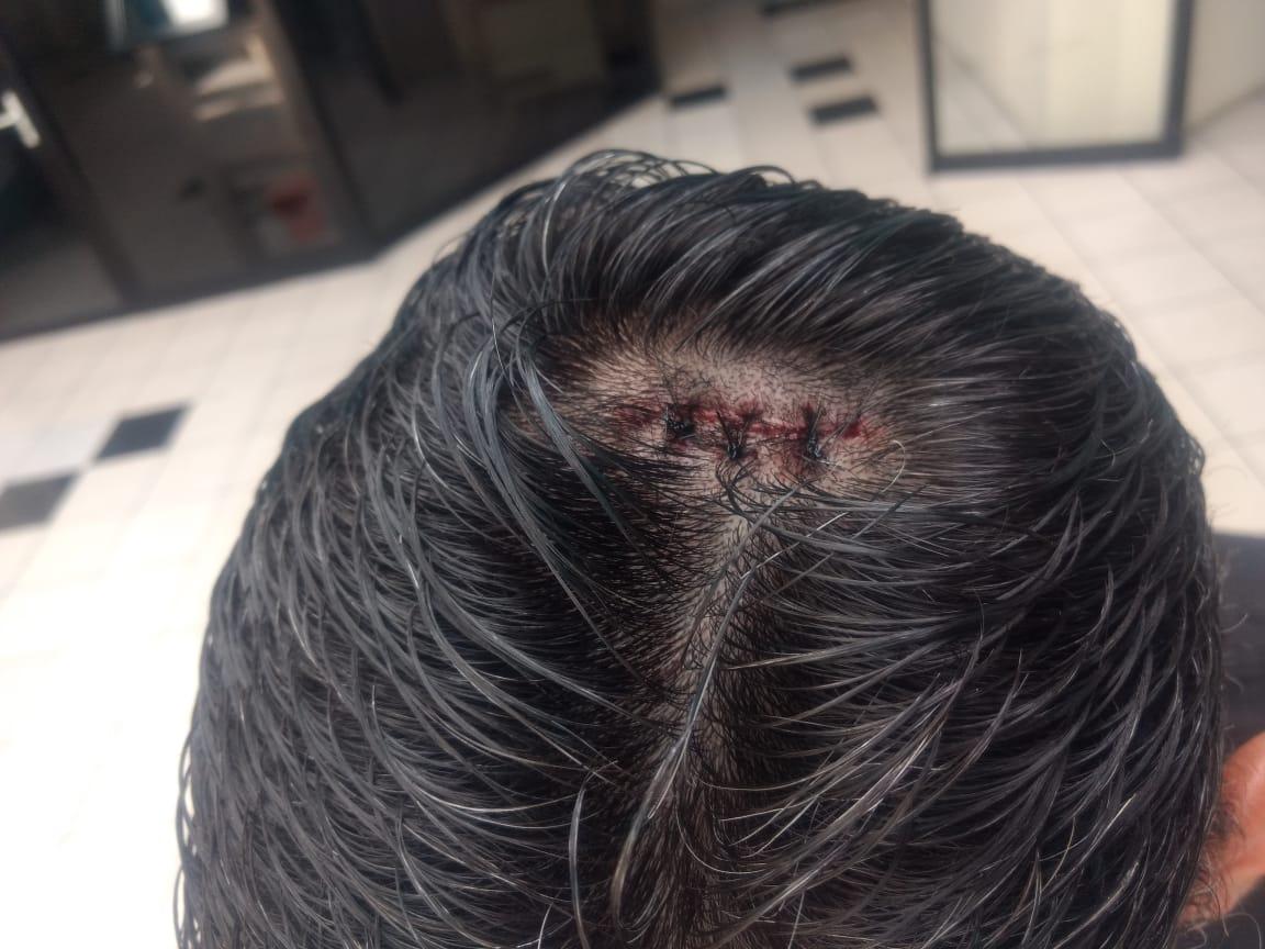 Mario Escobar recibió tres puntos de sutura por el botellazo que sufrió anoche en el estadio Verapaz. (Foto Prensa Libre: Cortesía Otto Galindo/TigoSports)