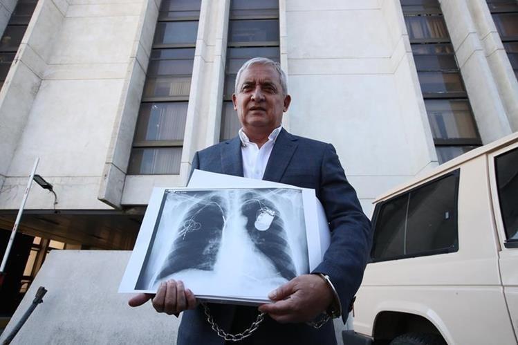 El expresidente Otto Pérez Molina utiliza un cardiodesfibrilador. (Foto Prensa Libre: Hemeroteca)