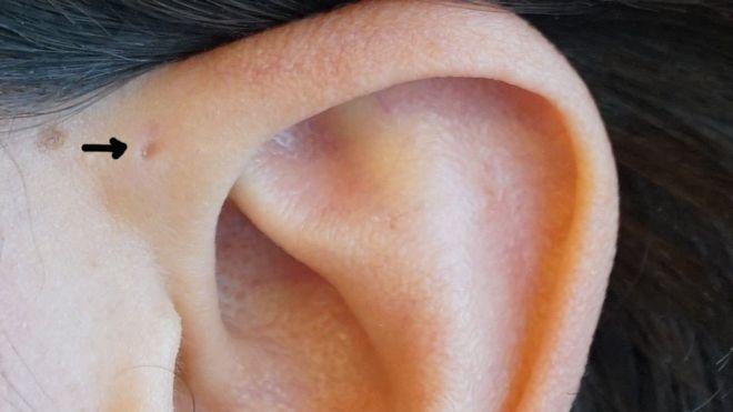 ¿Ya te fijaste si tienes un seno preauricular?