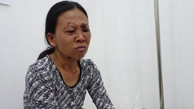 Emilia sobrevivió, pero perdió a su hija y sufrió severas heridas. BBC INDONESIAN