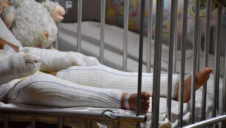 Niñas atendidas en el Hospital Roosevelt fueron trasladadas a EE.UU para recibir tratamiento especializado en quemaduras. (Foto Prensa Libre: Ministerio de Salud).