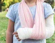 Los implantes con biovidrio está comenzando a revolucionar el tratamiento de fracturas. GETTY IMAGES