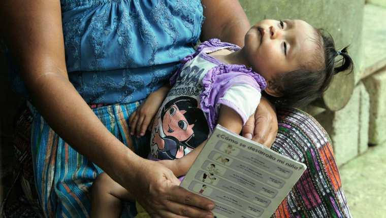 Una niña de San Miguel Panán, Suchitepéquez, sufre desnutrición aguda. (Foto Prensa Libre: Hemeroteca PL).