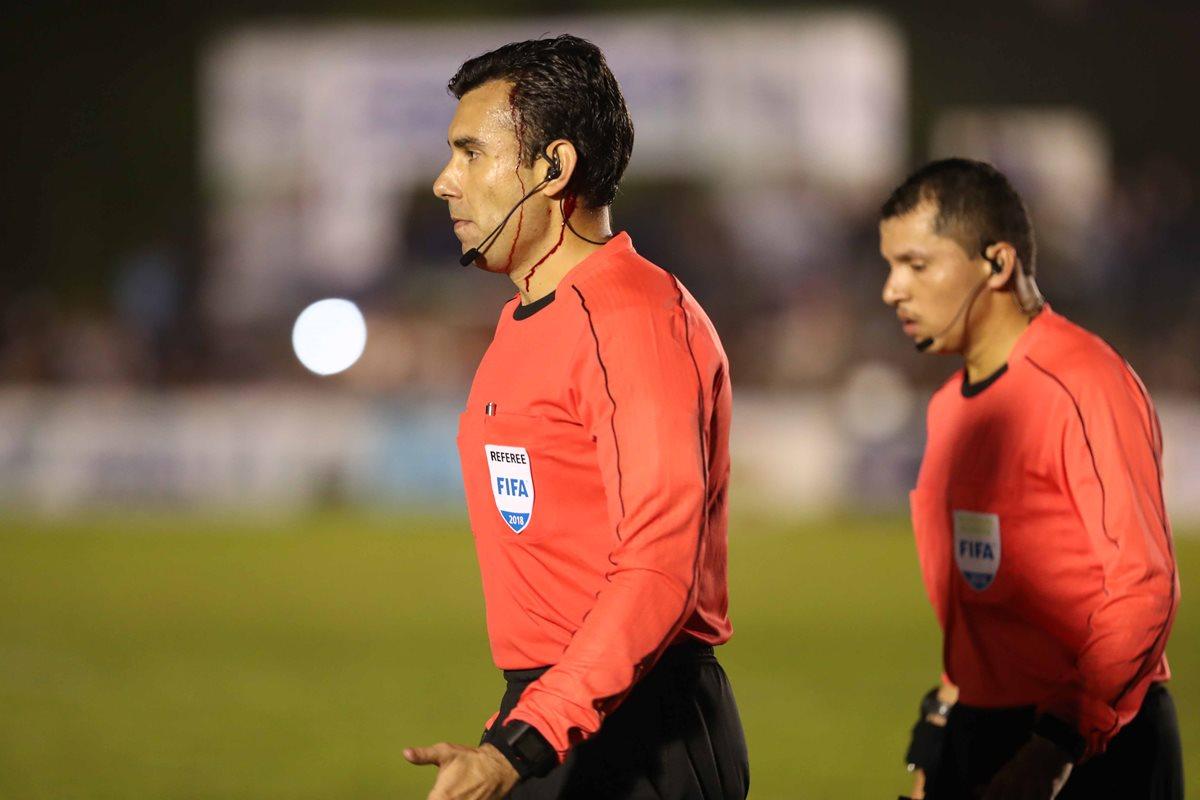 El árbitro Mario Escobar tuvo que ser suturado con tres puntos por la herida en su cabeza. (Foto Prensa Libre: Hemeroteca PL)