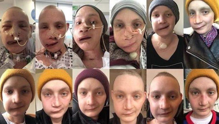 Collage de fotos del proceso de reconstrucción facial de Jen Taylor en un año.