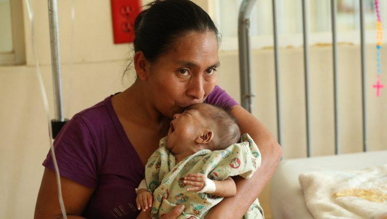 Alma Victoria Martínez toma entre sus brazos a su hija Graciela Esmeralda, quien sobrevivió a la cirugía de separación de su hermana siamesas. (Foto Prensa Libre: Hemeroteca PL)