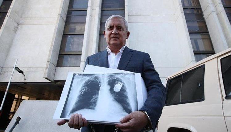 El expresidente Otto Pérez Molina tiene implantado un cardiodesfibrilador cuyo funcionamiento ha sido monitoreado por personal del Inacif. (Foto HemerotecaPL)