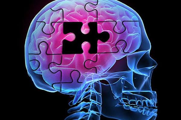 """El Alzheimer es una enfermedad degenerativa que afecta a personas en edades avanzadas. <br _mce_bogus=""""1""""/>"""
