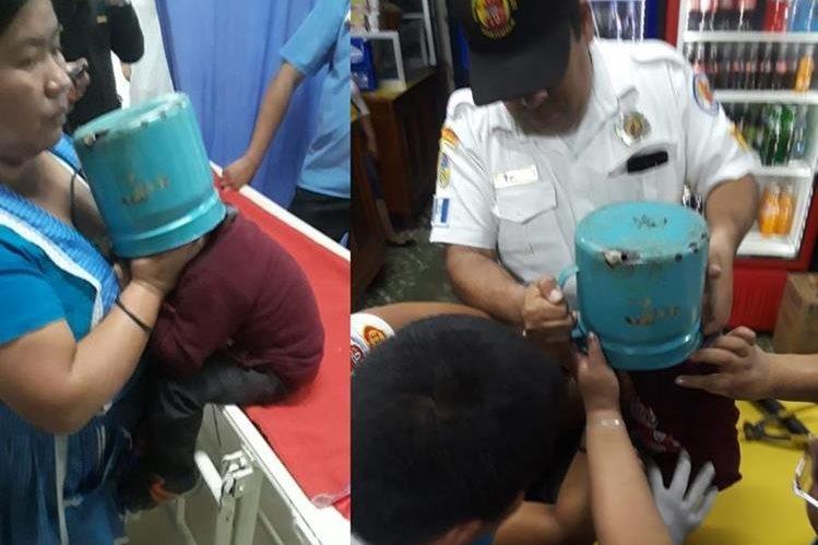 El pequeño fue llevado a la emergencia del Hospital Nacional de Chimaltenango, donde socorristas y médicos cortaron el pichel con tijeras para lámina. (Foto Prensa Libre: Cortesía Víctor Chamalé)