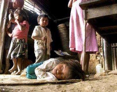 La desnutrición es uno de los principales problemas que afecta al país. (Foto Prensa Libre: Hemeroteca PL)