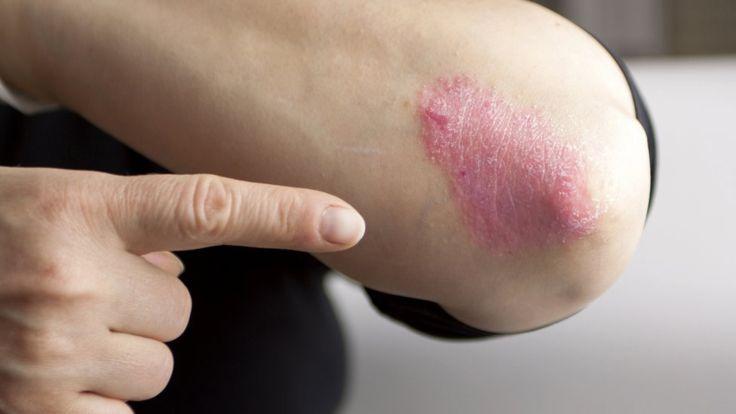 Para algunas afecciones cutáneas los dermatólogos pueden prescribir el uso de esteroides tópicos, pero solo bajo receta médica. (Getty Images).