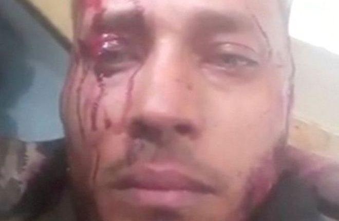 Pérez envió videos a su cuenta de Instagram en los que denunciaba el asedio policial y lucía ensangrentado. REUTERS