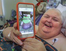 Roger Logan muestra la imagen del tumor del cual fue operado recientemente. (Foto Prensa Libre: AP).