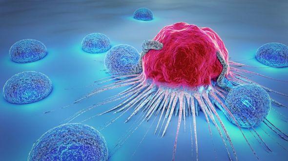 La supervivencia al cáncer ha aumentado mucho en la mayoría de países ricos. GETTY IMAGES