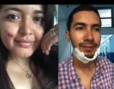 Los esposos Mario Colindres y Marcela Hintz solo resultaron con golpes leves en el accidente del bus, en el kilómetro 214, El Jute, Los Amates, Izabal. (Foto Prensa Libre: Tomada de Facebook)