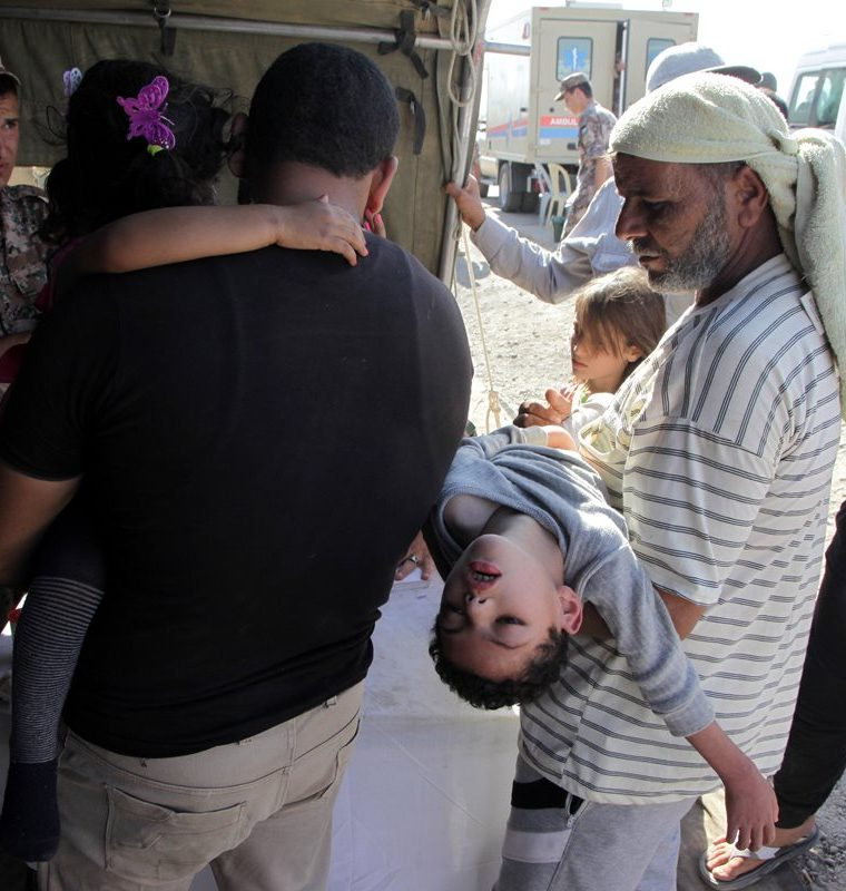 Menores esperan ser atendidos por médicos a causa de las secuelas de la guerra.  (EFE)