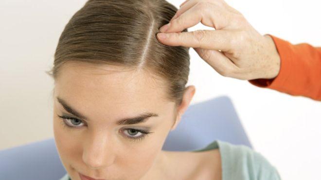 Por qué tenemos pelo en algunas partes del cuerpo y en otras no