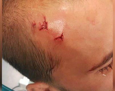El internacional holandés Bas Dost recibió un golpe en la frente durante la agresión de los ultras a los jugadores y cuerpo técnico del Sporting de Portugal. (Foto Prensa Libre: Redes)