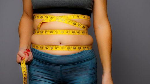Los doctores se mostraron sorprendidos de que, a pesar de que la obesidad es un tema importante en materia de salud, muy pocos profesionales sanitarios respondieron correctamente (Foto Prensa Libre: GETTY IMAGES).