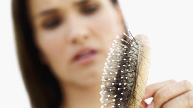 ¿Por qué se nos cae el cabello y cuándo debemos verlo como un alarmante signo de alopecia o una enfermedad?