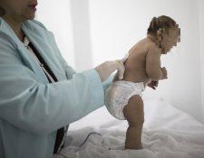 Autoridades de salud estadounidenses informaran que no hay dudas de que el virus del zika causa el nacimiento de bebés con cabezas anormalmente pequeñas. (Foto Prensa Libre: AFP).