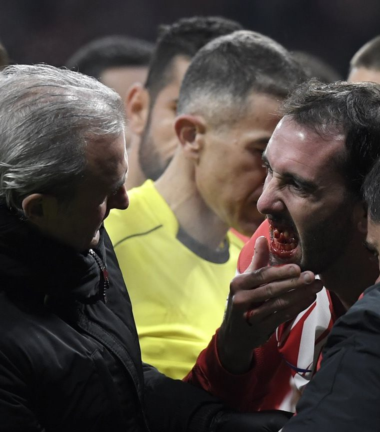 El cuadro rojiblanco aún no ha definido el tiempo que será baja el defensor uruguayo. (Foto Prensa Libre: AFP)