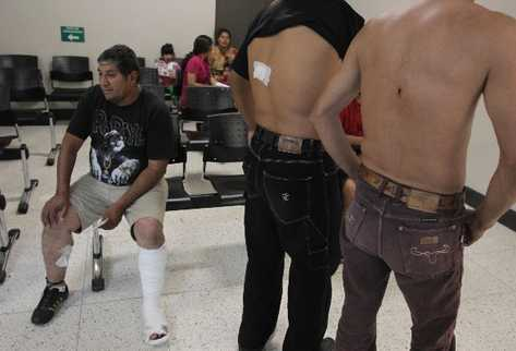 Víctimas muestran las heridas que sufrieron durante el ataque en la mina San Rafael.