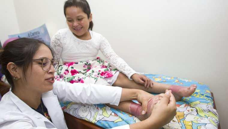 Astrid Hernández es atendida por la fisioterapista Amparo Hidalgo en la Clínica de Quemaduras Infantiles, donde se recupera por las quemaduras del Volcán de Fuego. (Foto Prensa Libre: Norvin Mendoza)