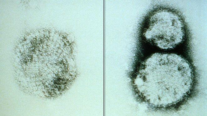 El primer caso de este brote de hantavirus se confirmó el 14 de noviembre en la localidad de Epuyén, en la provincia argentina del Chubut. GETTY IMAGES