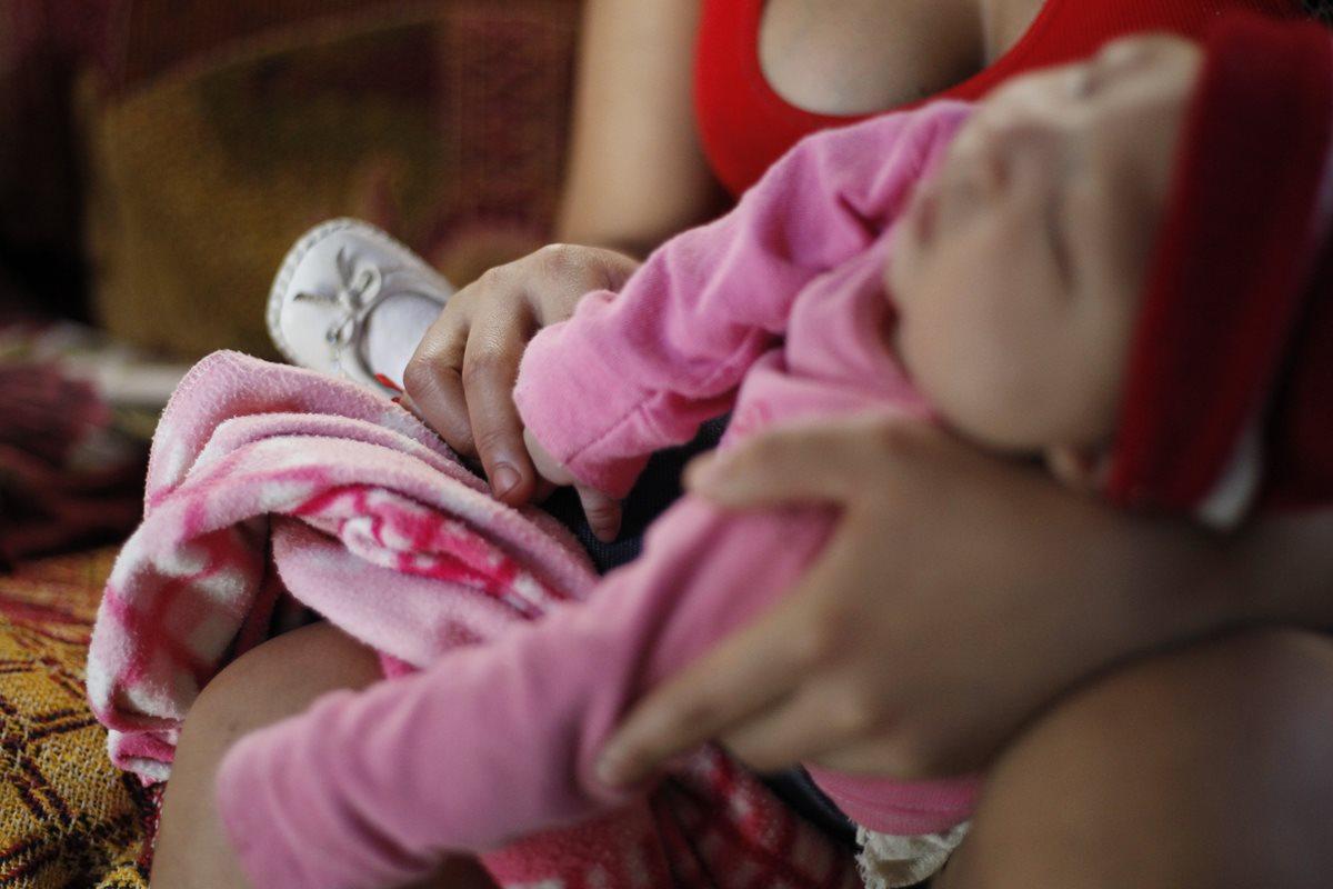 Virus del Zika | Nacen 49 niños con microcefalia en Guatemala