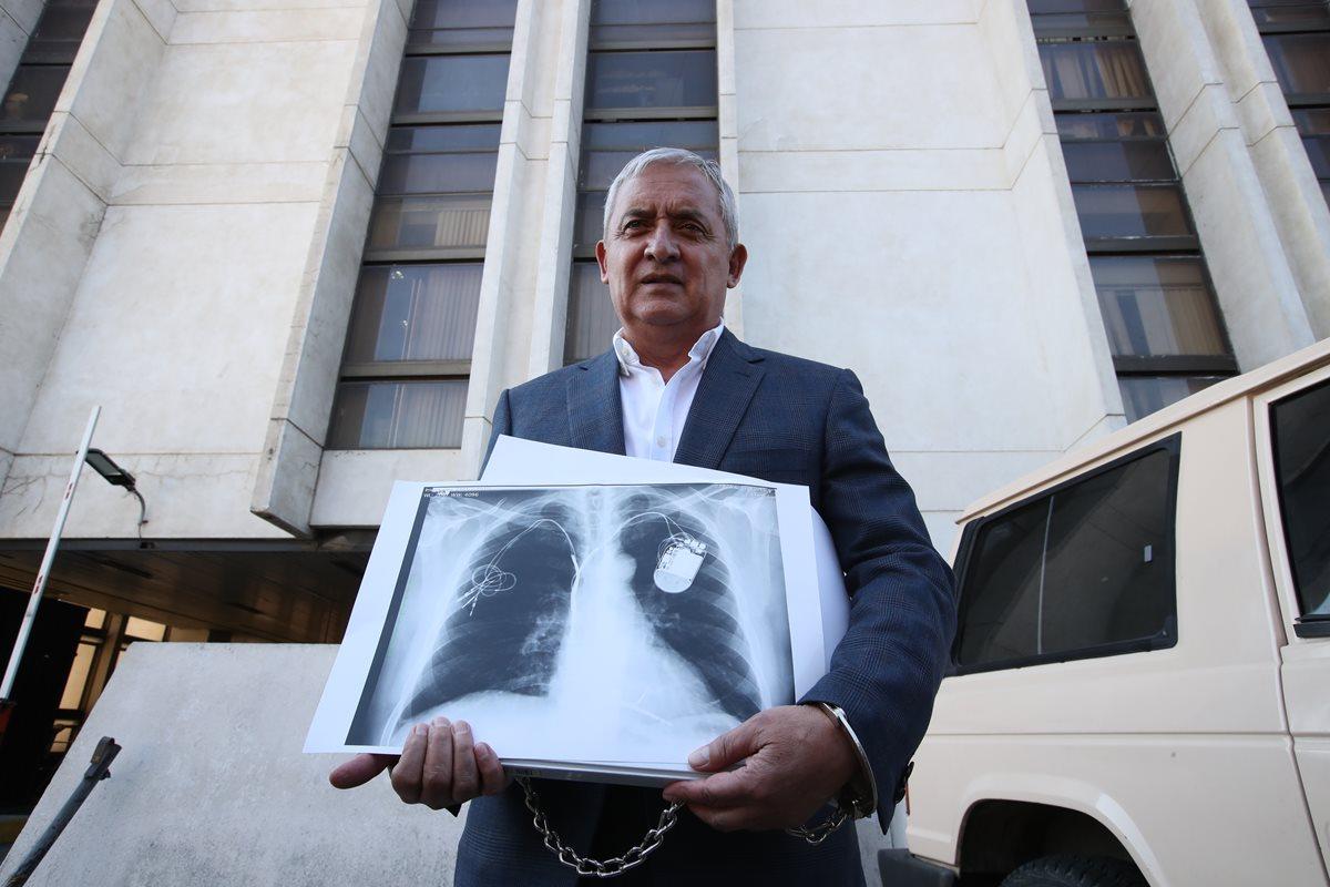Otto Pérez Molina será trasladado al Centro Médico Militar