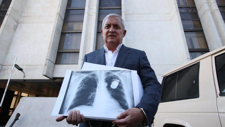 Otto Pérez Molina sostiene una radiografía, que supuestamente es de su pecho, la llevó a la audiencia con el juez Miguel Ángel Gálvez. (Foto Prensa Libre: Hemeroteca PL)