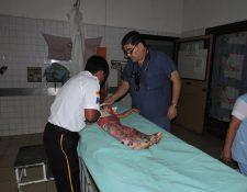 Bomberos Voluntarios trasladaron en estado delicado a la menor al Hospital Nacional de Chimaltenango. (Foto Prensa Libre: Víctor Chamalé)