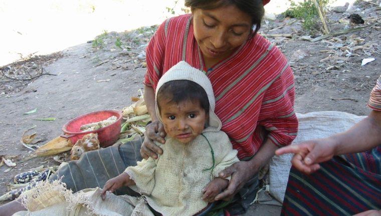 En varios municipios de Huehuetenango el Ministerio de Salud detectó que siete de cada diez niños padecen desnutrición crónica. (Foto Prensa Libre: M. Castillo)