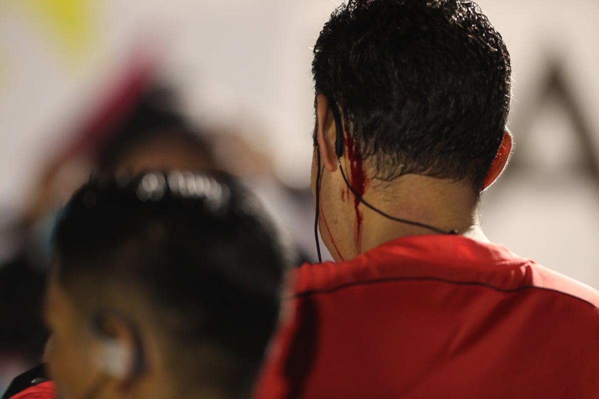 Mario Escobar fue agredido y tuvo que abandonar el terreno de juego. (Foto Prensa Libre: Edwin Fajardo)