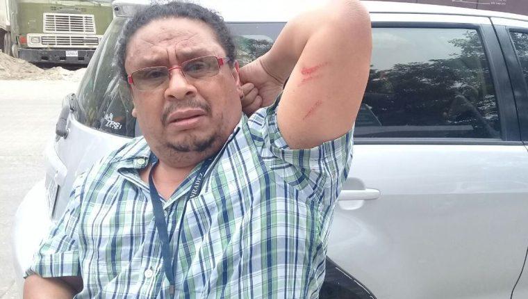 Rigoberto Escobar, corresponsal de Prensa Libre en Petén, muestra las marcas que le quedaron de la agresión. (Foto Prensa Libre: Cortesía)