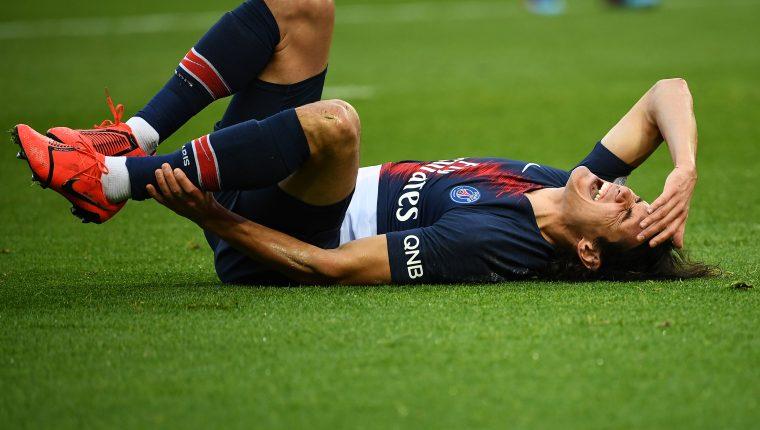 Edinson Cavani se lesionó el pie derecho. El jugador del PSG es duda para enfrentar al Manchester United en la Champions. (Foto Prensa Libre: AFP)