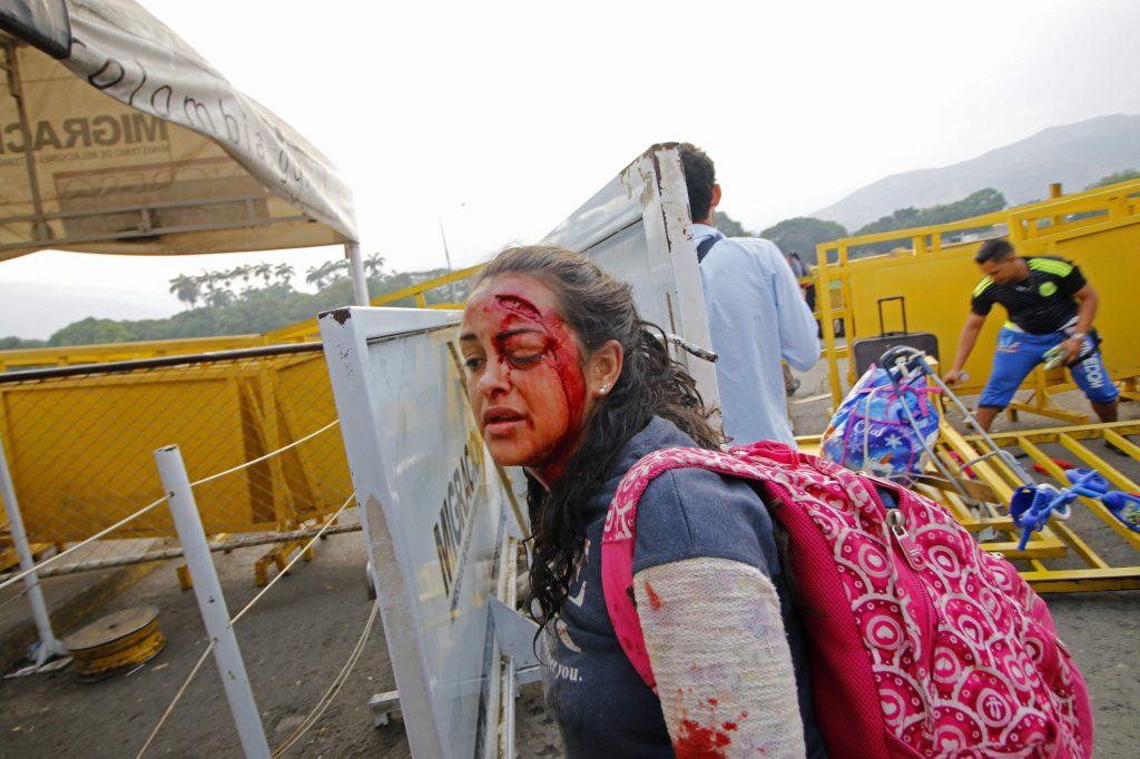 Una mujer camina después de ser herida cuando dos vehículos blindados venezolanos manejaron desde el lado venezolano del Puente Internacional Simón Bolívar hacia Colombia, derribando una valla de seguridad en Cúcuta