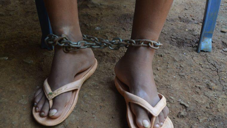 Una cadena es utilizada para mantener inmóvil a una mujer en Nuevo San Carlos, Retalhuleu. (Foto Prensa Libre: Jorge Tizol)