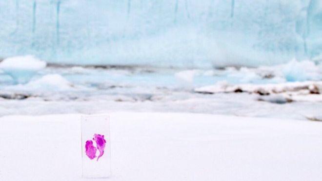 Giertz quiso mandar a la Antártida una placa con parte del tumor cerebral que le extrajeron (ARIEL WALDMAN)